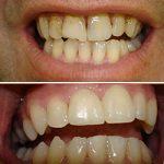 Os dentes e as férias de Verão
